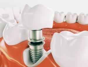 , Dental Implants